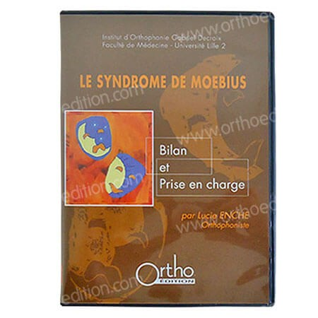 Le syndrome de Moebius