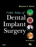 Color atlas of dental implant surgery (3rd edition)