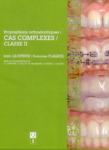 Propositions orthodontiques : cas complexes, classe II