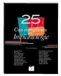 25 cas complexes en Implantologie