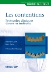 Les contentions : protocoles directs et indirects
