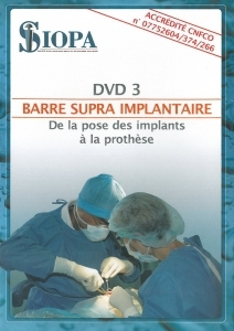 Barre supra implantaire : de la pose des implants à la prothèse
