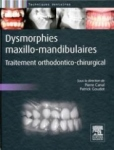 Dysmorphies maxillo-mandibulaires : traitement orthodontico-chirurgical