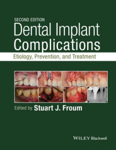 Dental implant complications : etiology, prevention and treatment (2nd edition)