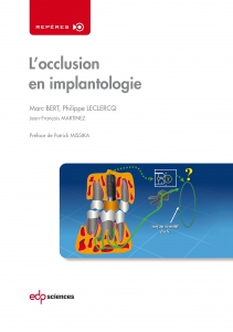 L'Occlusion en Implantologie
