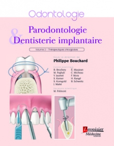 Parodontologie & dentisterie implantaire : thérapeutiques chirurgicales (Tome 2)