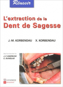L'extraction de la dent de sagesse