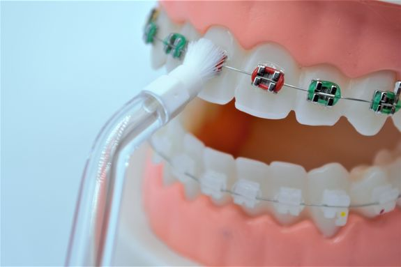 Canule orthodontique NP1 & NP2 X2