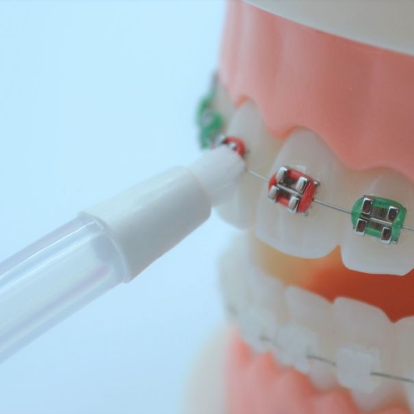 Canule orthodontique NP3 MY FIRST (X2)