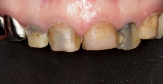 PALATAL SILICONE  CONTRASTOR DOUBLE SIDE